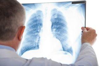 Criança pode fazer exame de raio-X? Tire suas dúvidas