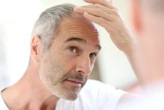 Essa receita promete controlar a queda de cabelo de homens e mulheres