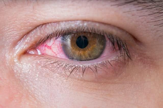 11 técnicas caseiras para tratar olhos irritados