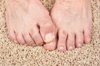 3 formas naturais de detonar o fungo pé-de-atleta