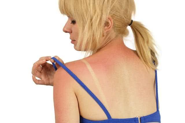 Use folha santa e babosa para tratar queimaduras solares