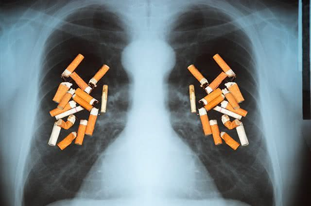 Câncer de pulmão atinge mais pessoas de meia idade. Dicas naturais para evitar isso