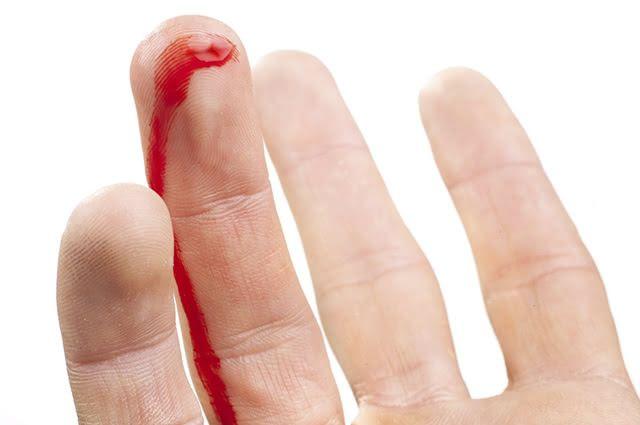 A hemofilia é uma doença genética mas pode ser abrandada com alguns remédios caseiros