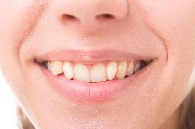 Por que os dentes entortam? Veja o motivo e confira dicas naturais para fortificá-los