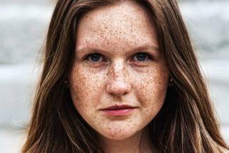 Tipos de manchas de pele e como tratar. Fique por dentro do assunto