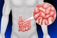Intestino permeável pode ser a causa de muitas doenças, sabia dessa?