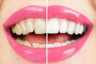 Quer ter dentes branquinhos? Evite comer esses alimentos