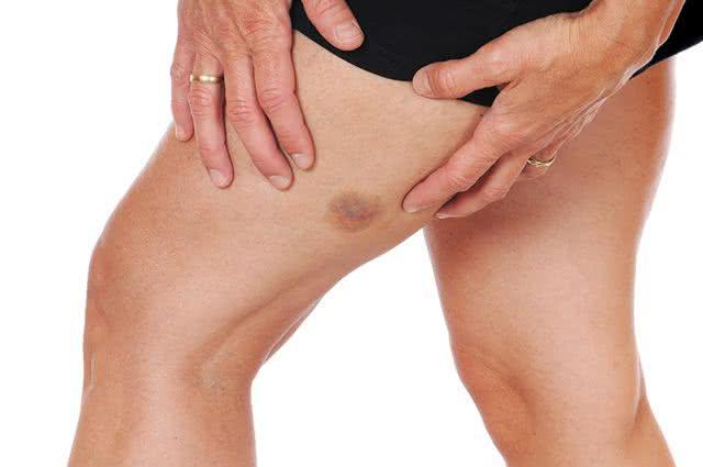 Veja a razão pela qual algumas vezes surgem hematomas na pele