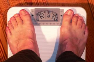 Obesidade: 5 perguntas e respostas sobre a gastroplastia endoscópica