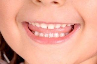 Preste atenção nos cuidados com os dentes de leite do seu filho