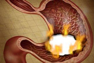 10 sintomas de úlcera que você pode ter e não sabe do que se trata