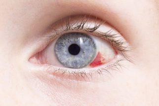 Mancha vermelha no olho: o que pode ser e como tirar