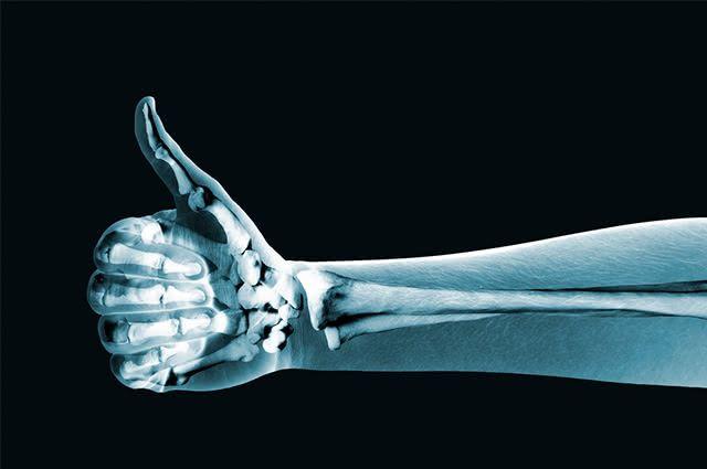 Tecido ósseo é fortalecido ainda mais a partir da presença de vitamina D no organismo