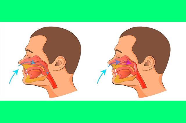 Inflamação é o que de fato é uma obstrução nasal