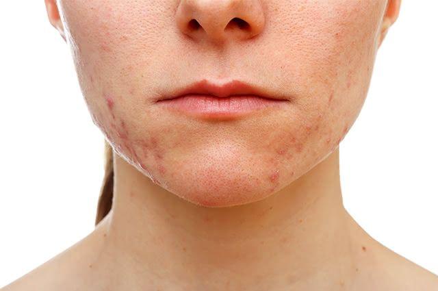 Vitamina A é tudo o que você precisa para auxiliar no combate à acne