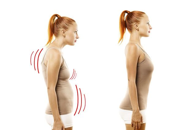 Uma má postura pode desencadear lesões na coluna, ombros e quadril