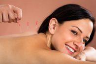 Os benefícios da acupuntura