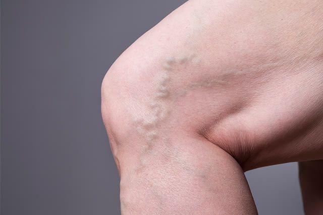 Origem e tratamento para gordura na pele é algo essencial de saber para quem sofre com isso