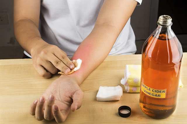 O vinagre consegue tratar doenças que afligem a pele, como micose e frieira