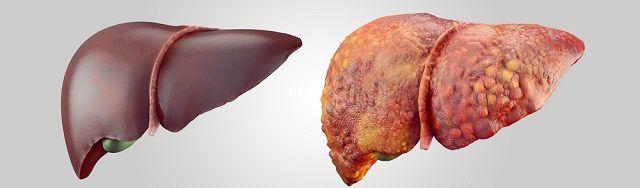 A gordura no fígado se caracteriza pelo excesso de gordura no interior das células desse órgão