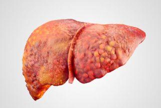 10 chás para gordura no fígado