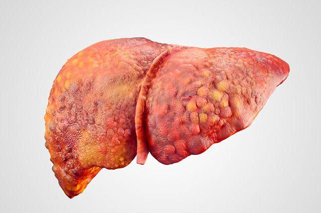 Para tratar a gordura no fígado em casa aposte em elementos naturais