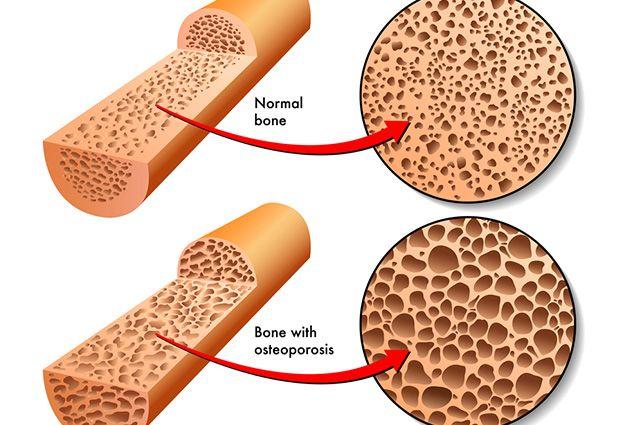 A osteoporose é uma doença conhecida por fragilizar os ossos