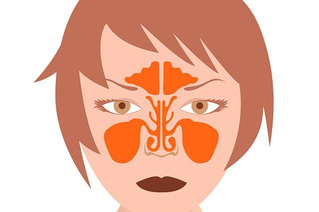 A sinusite aguda dura até quatro semanas, já a crônica ultrapassa esse tempo