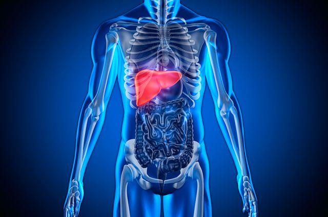 A gordura no fígado, se não tratada, pode evoluir para uma cirrose