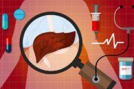 Gordura no fígado causa o quê?