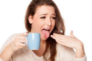 O que fazer quando queimar a língua