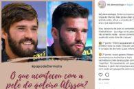 Pele do goleiro do Brasil chama atenção da internet; saiba como evitar o problema