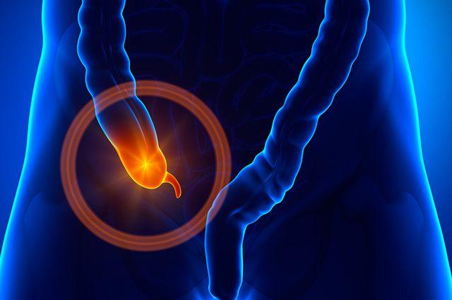 Imagem do apêndice