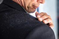Como acabar com a caspa usando remédios caseiros