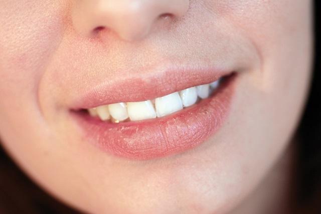 Mulher com lábios ressecados